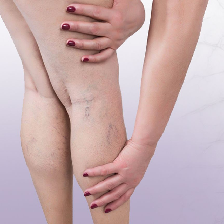 Varicose and Spider Vein Treatments